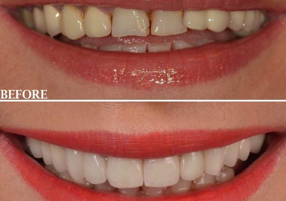 Ofertă Faţete Dentare