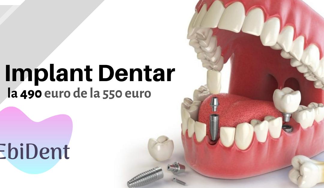 Analize necesare inainte de fixarea unui implant dentar
