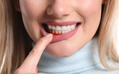 Măsuri de profilaxie împotriva bolii parodontale